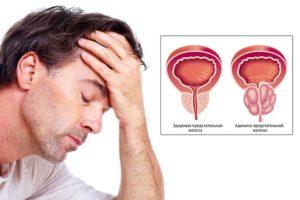 Как эффективно лечить аденому простаты прополисом
